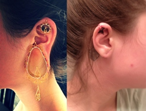 Leanna Richard's ears before and after ear fix-it surgery. (Submitted by Leanna Richard)